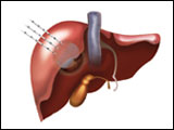 Liver Illustration for Galil Medical